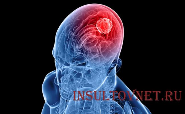 Злокачественная опухоль мозга