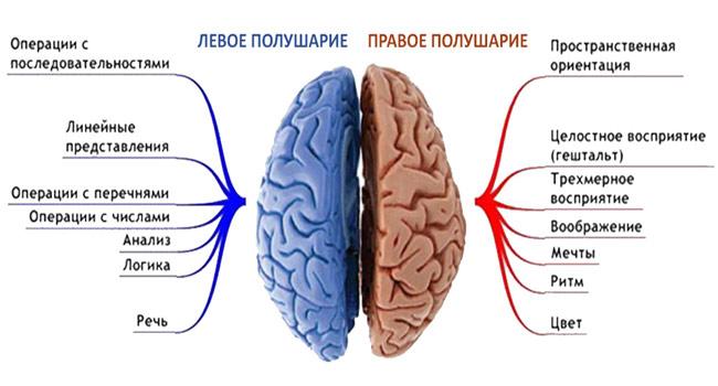 Инсульт левого полушария