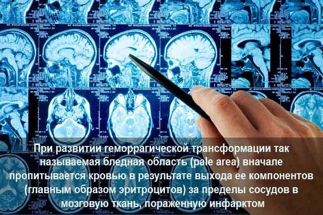 Геморрагическая трансформация ишемического инсульта